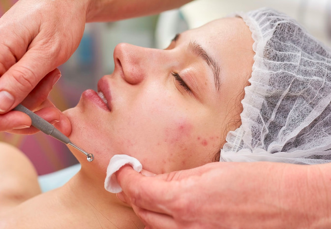 Woman receiving anti acne treatment.