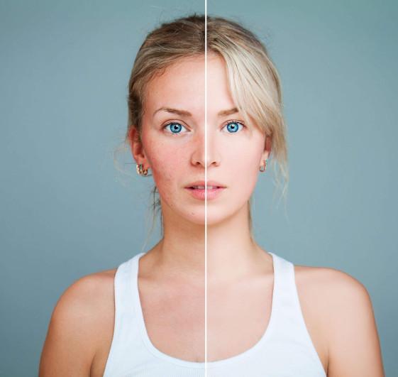 LA dermatology before-after