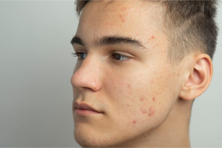 Young man with accutane on his face.