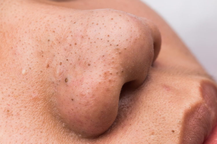 Example of skin with blemishes.