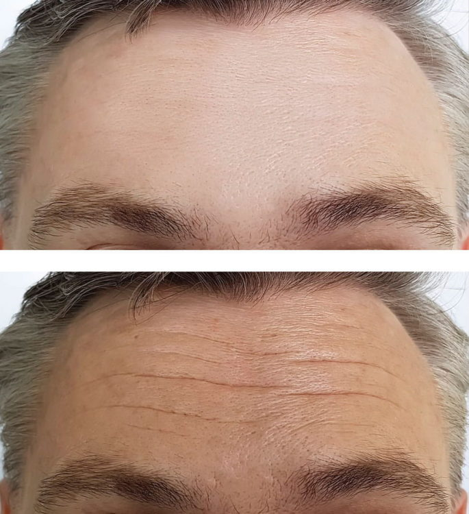 Before and after Dysport treatment