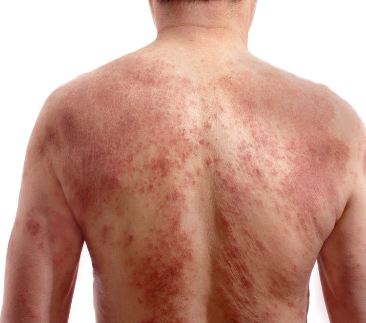 Man with back full of Eczema