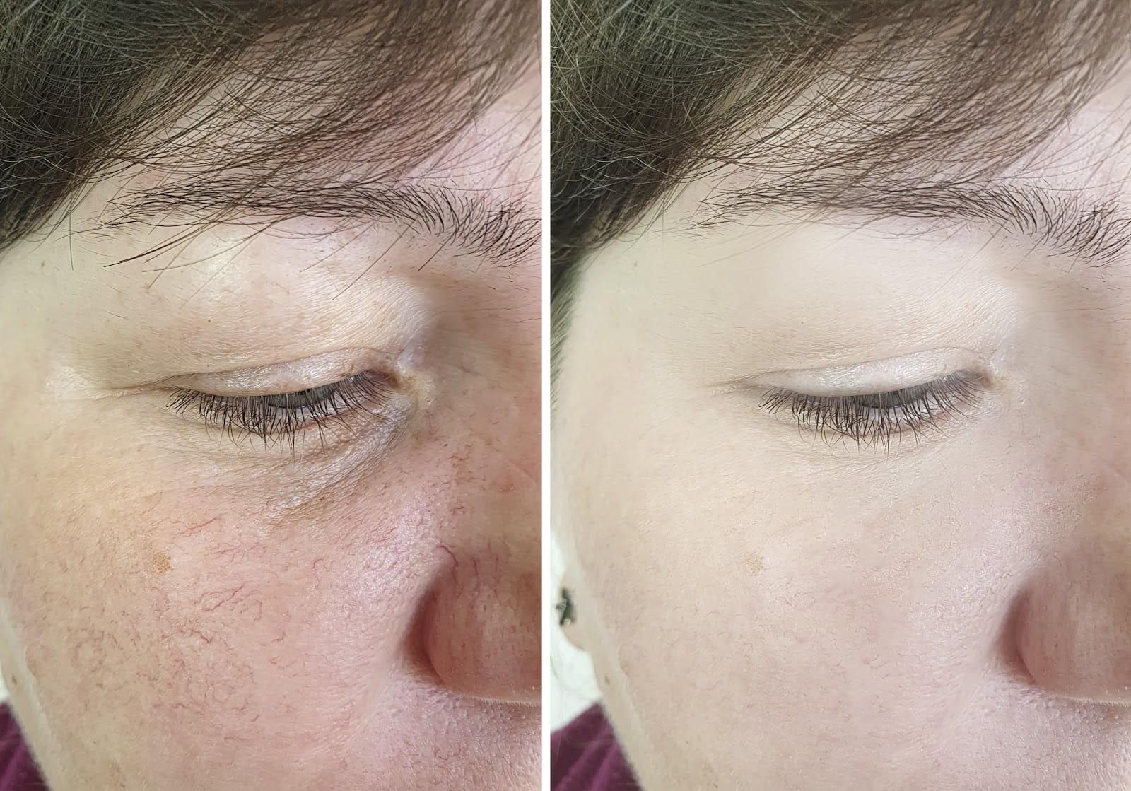 Rosacea Treatment In Los Angeles Bhskin Dermatology