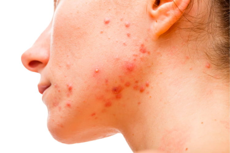 Woman with accutane on her face.