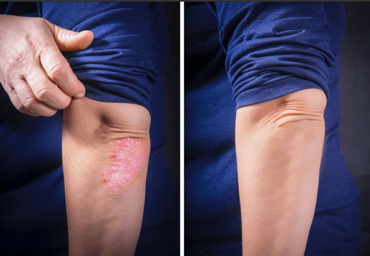 Before and after the treatment against Psoriasis.