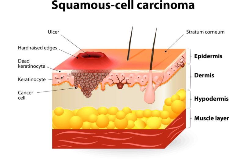 Squamous Cell Carcinoma Diagram
