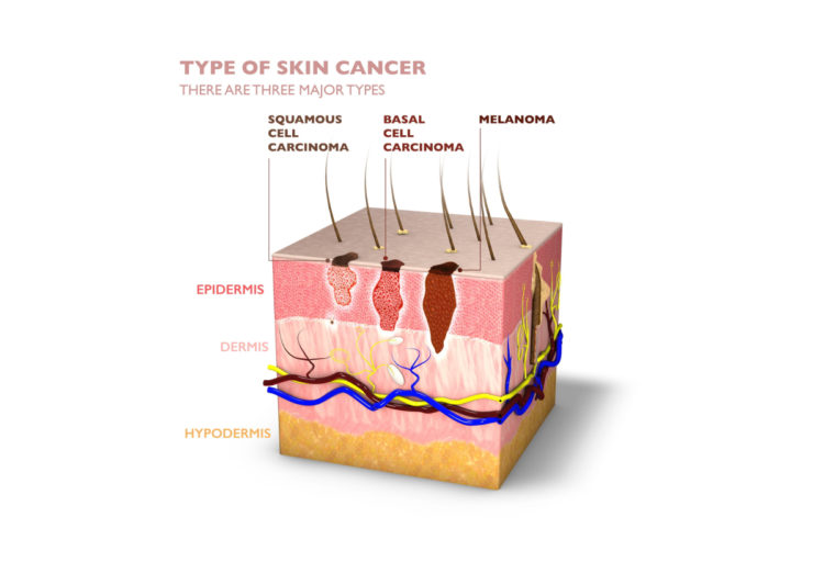 Diagram of types of skin cancer.