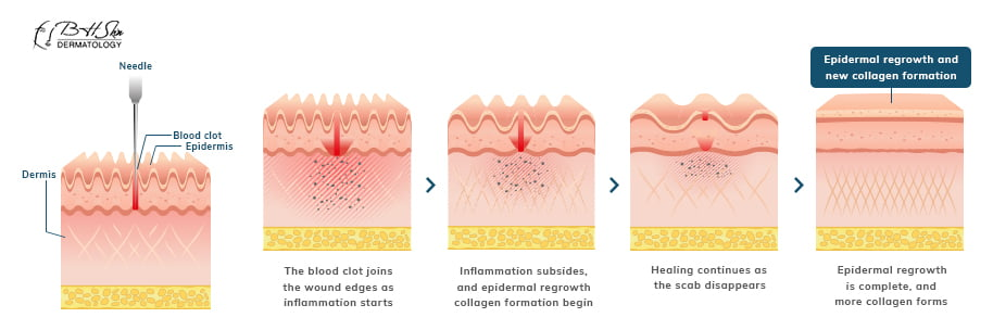 epidermal regrowth and new collagen
