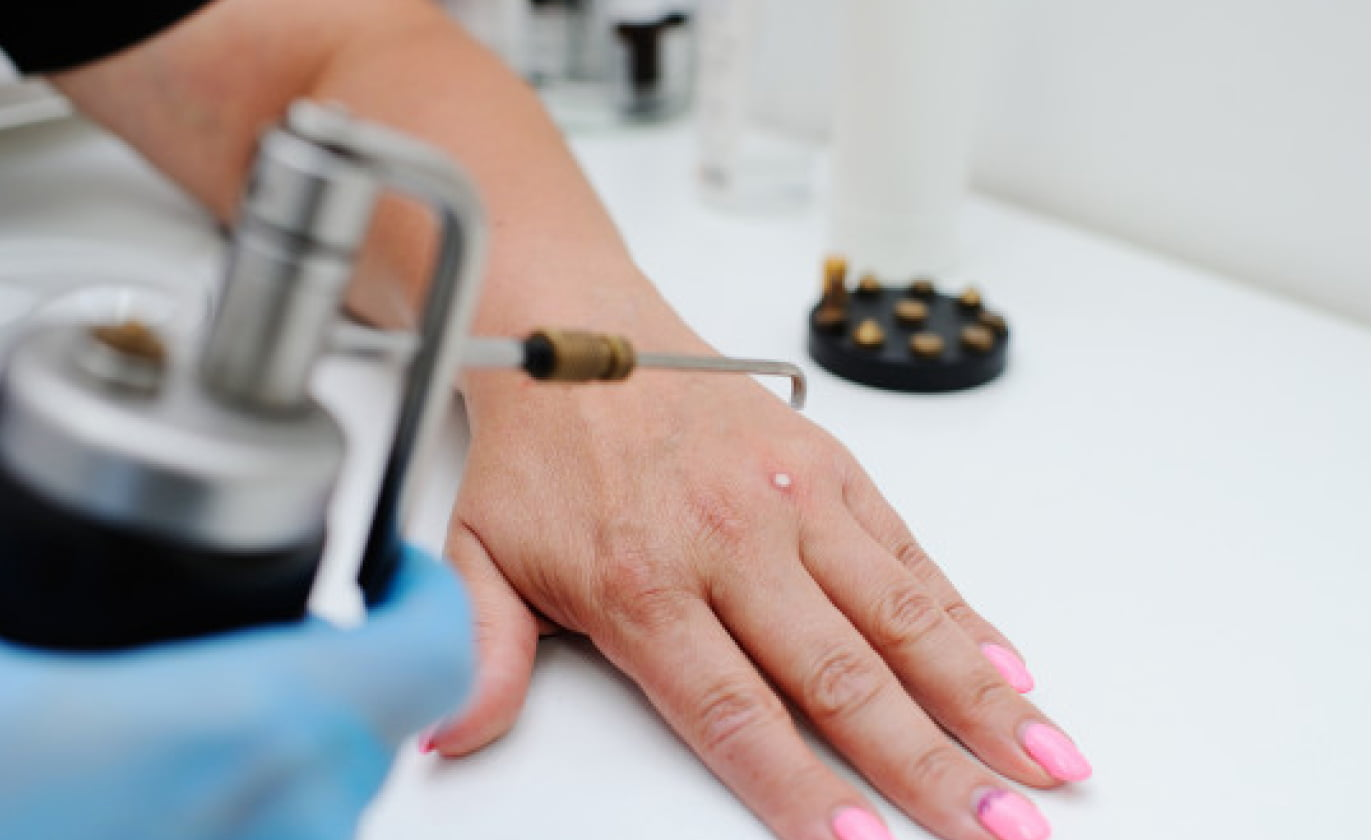 wart removal process & recovery