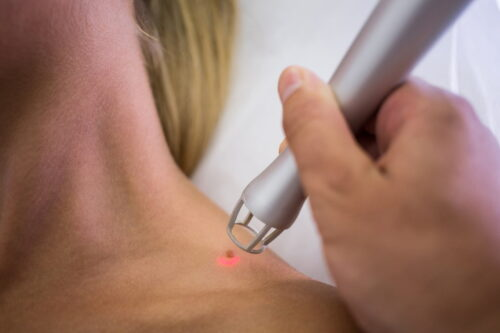 botox recovery tips
