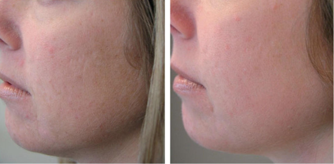 PRP Injection before and after