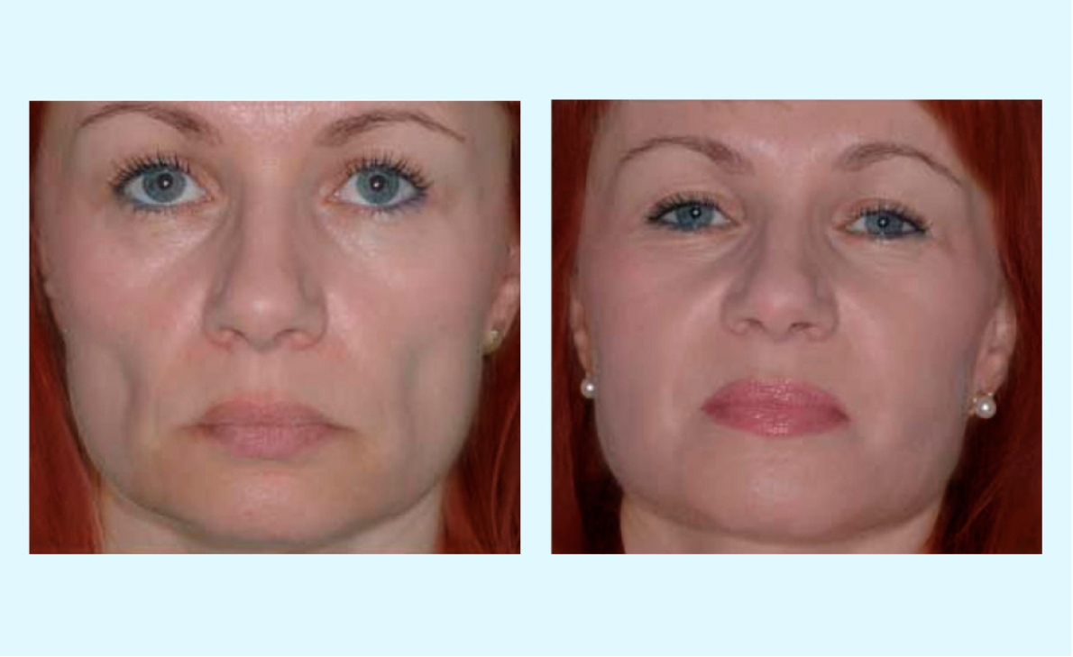 cosmetic dermatology before and after photo