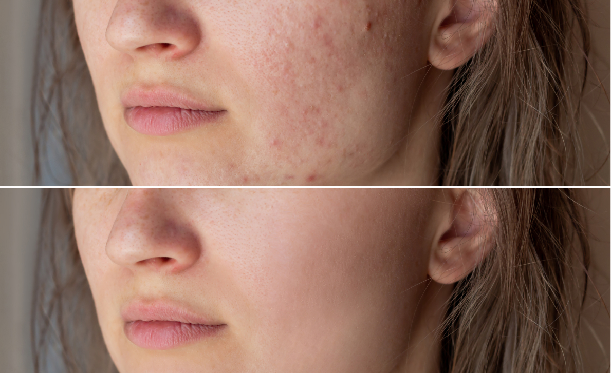 laser dermatology results - before and after